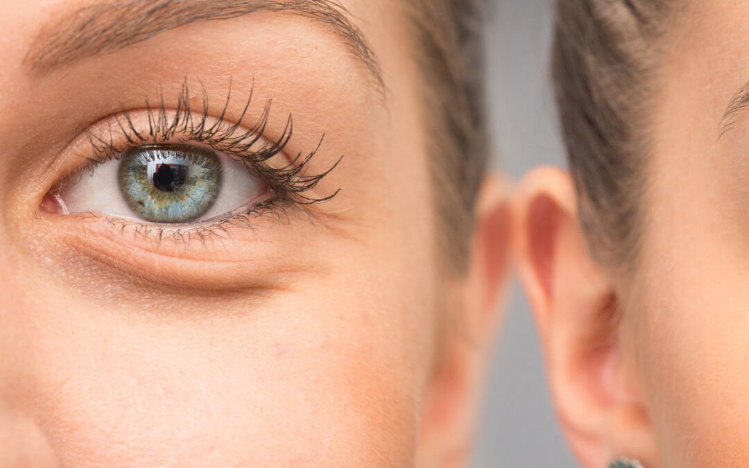Use Mascara Watch Out For Eyelash Mites Maple Grove Eye Doctors