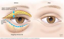 Bags under Eyes Maple Grove Eye Doctors at Pearle Visionco