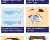 Contact Lens Insertion Maple Grove Eye Doctors